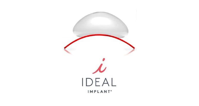 Ideal Implants logo