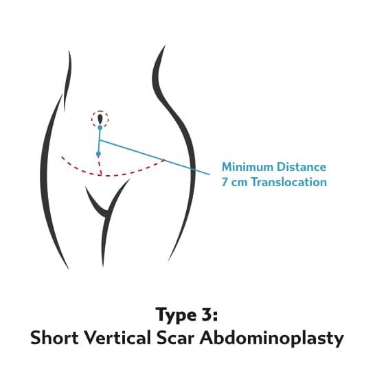Tummy Tuck Type 3 - Short Vertical Scar Abdominoplasty