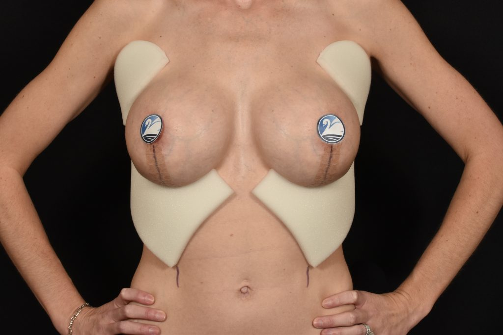 Foam under and on sides of breasts after breast lift
