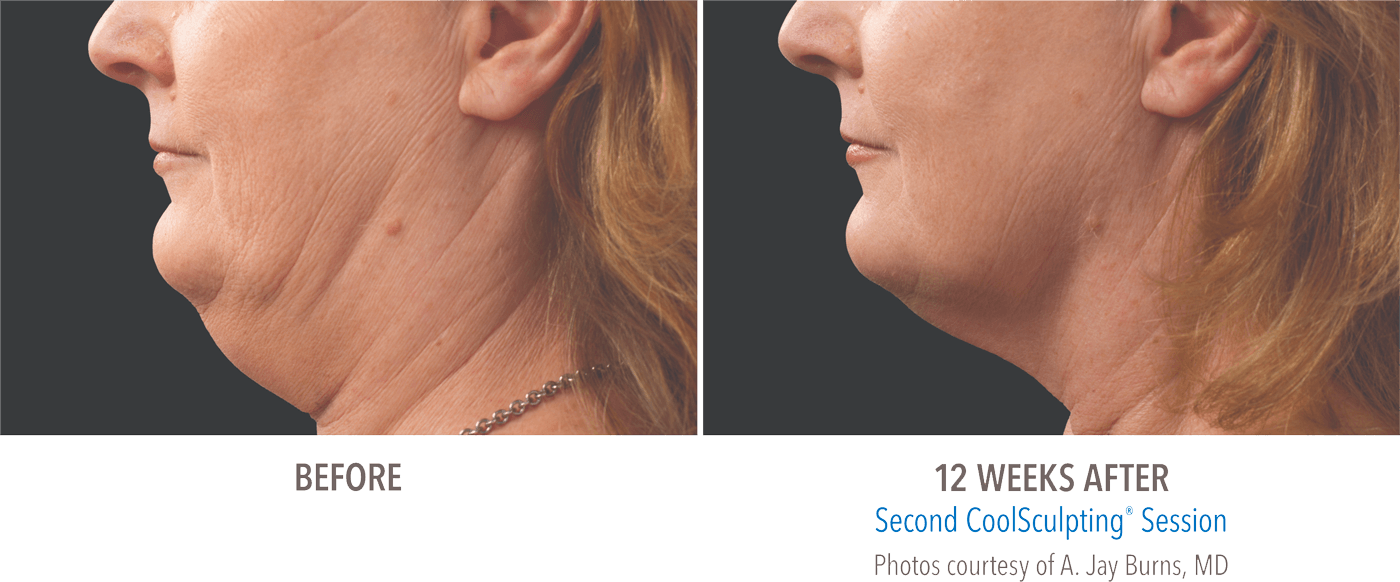 CoolSculpting before and after photos of reduced neck fat