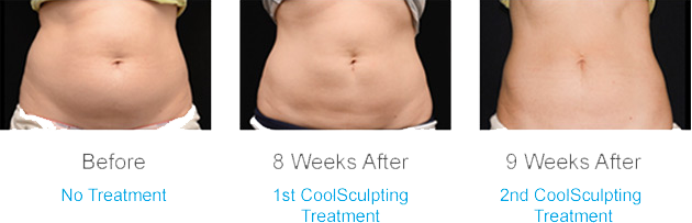 CoolSculpting before and after photos abdomen