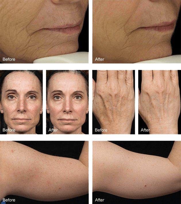 Fraxel laser skin resurfacing before and after photos