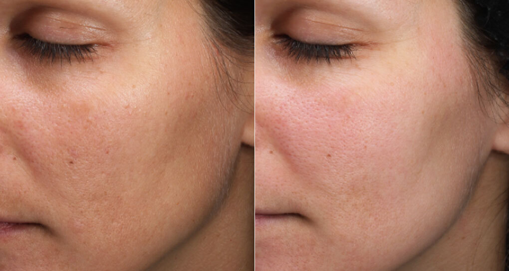 Moxi laser skin rejuvenation before-and-after photos