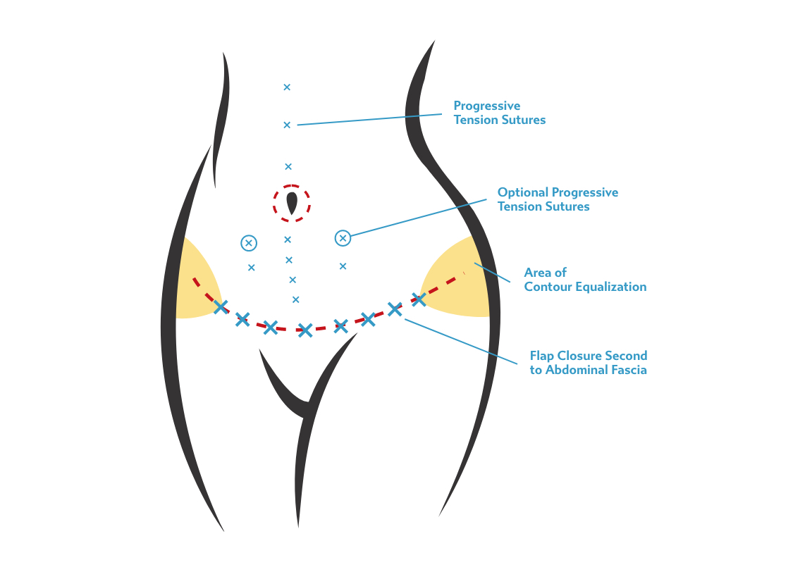 Tummy tuck incision options