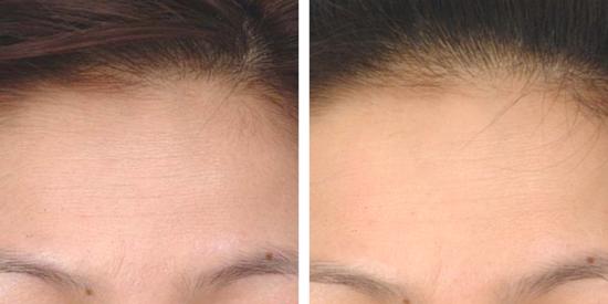 Exciting new medical spa treatments at Jade MediSpa, including IPL skin rejuvenation.