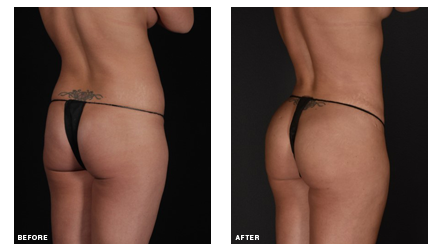 Before and after a Brazilian butt lift procedure performed at The Wall Center by Dr. Simeon Wall Jr.